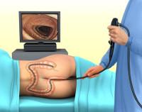Процедура Колоноскопия