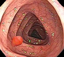 Полип толстого кишечника (колоноскопия)