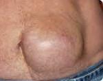 Грыжа внизу живота слева у женщин симптомы