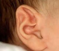 Аномалии развития ушной раковины