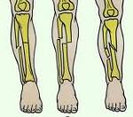 Признаки и лечение различных видов переломов голени