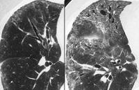 Постлучевой пневмонит