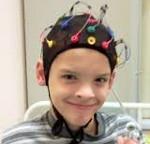 Фокальная эпилепсия у детей - Всё о неврологии
