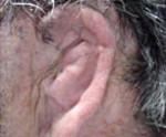 Атрезия слухового прохода - причины, симптомы, диагностика и лечение