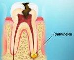 Причины и лечение гранулемы на корне зуба