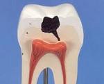 Строение зуба человека с кариесом