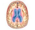 Внутренняя асимметричная неокклюзионная гидроцефалия