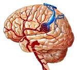 Венозная мальформация сосудов головного мозга