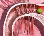 Спайки в малом тазу – симптомы и лечение: что это такое, как возникают после операции и кесарева сечения