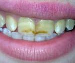 Некариозные заболевания твердых тканей зубов