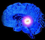 Киста в лобной части головы симптомы