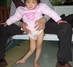 Симптомы полиомиелита у детей и взрослых. Патогенез. Инкубационный период. Последствия. Фото. Видео