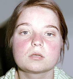 красная волчанка-поражения лица в виде бабочкикрасная {amp}#xD;{amp}#xA;волчанка-поражения лица в виде бабочки
