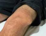 Вывих коленного сустава - причины, симптомы и лечение