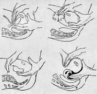 Засовывание руку во влагалище