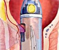 Процедура Дезартеризация геморроидальных узлов (HAL-RAR)