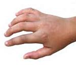 Перелом пальца руки ребенка симптомы — Врач советует