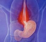 Хронический рефлюкс эзофагит А степени — пищевод Барретта