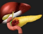 Рак тела и хвоста поджелудочной железы