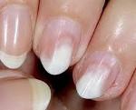 Лечение онихолизиса ногтей на руках