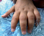 Ювенильный артрит – причины, симптомы и лечение ювенильного артрита